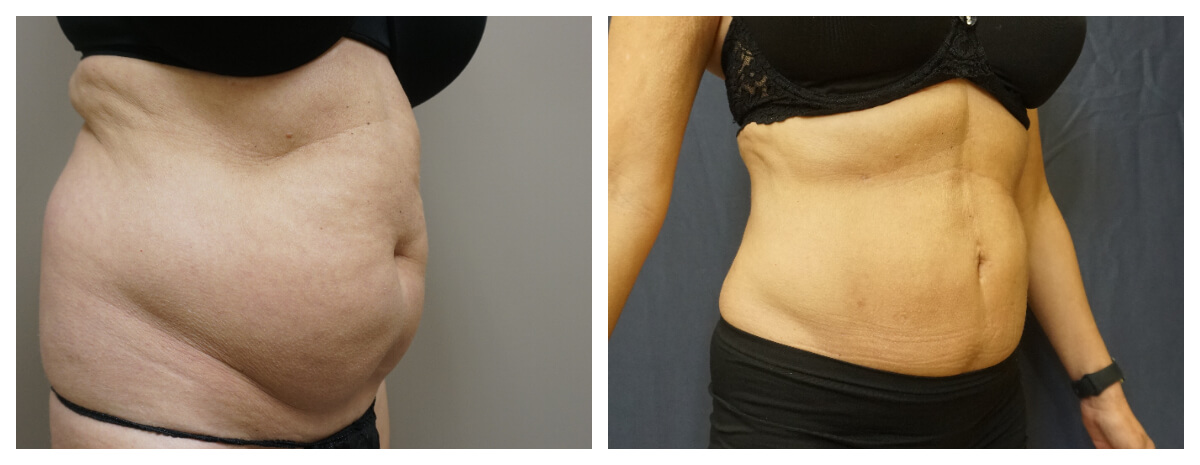 Example of Abdomen Flank Liposuction, Akkary Surgery Center
