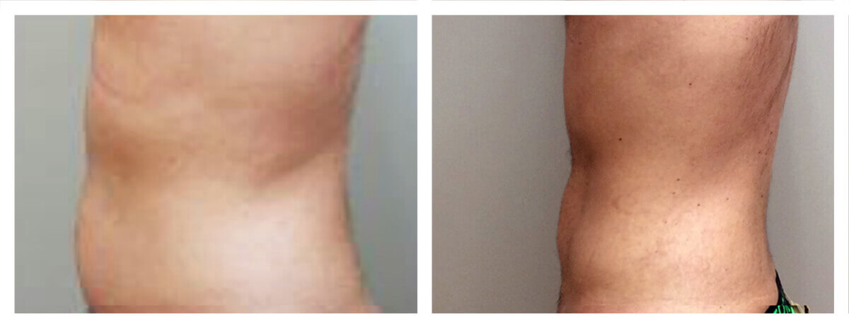 Example of Abdomen Liposuction for male patient, Dr. Akkary