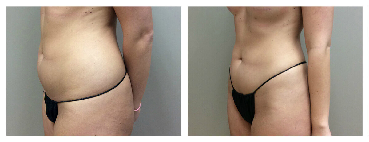 Example of Abdomen Liposuction for female patient, Dr. Akkary