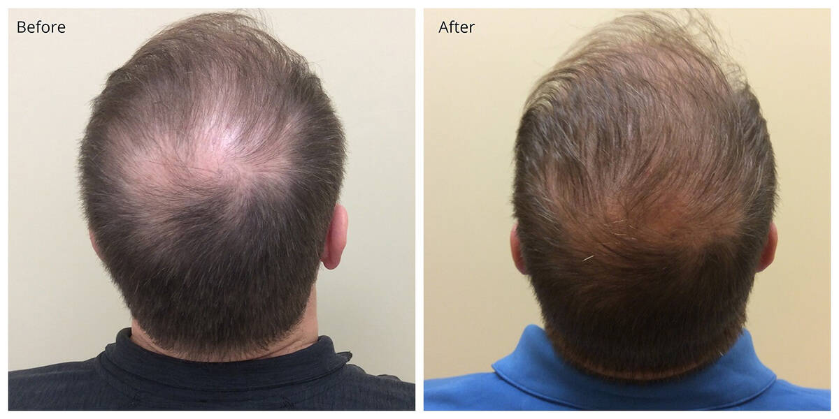 PRP Before and After, Hair Restoration, Dr. Akkary, Morgantown, WV
