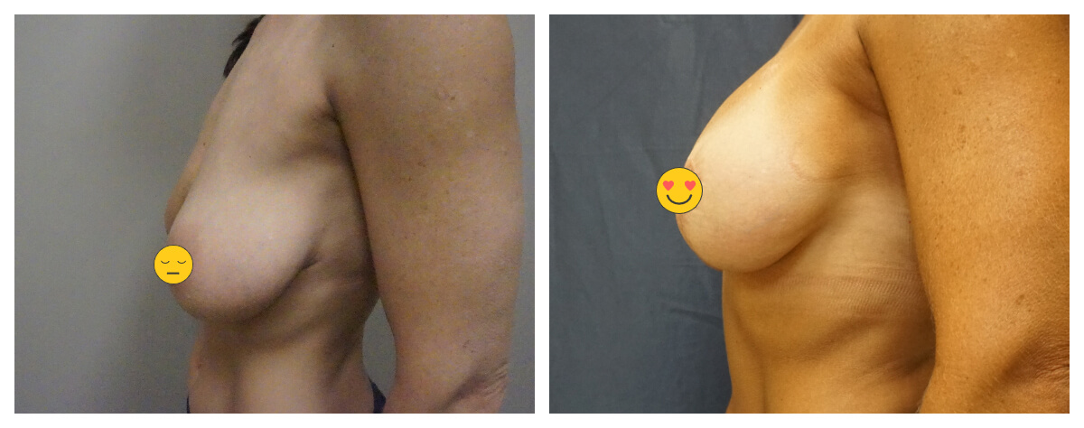 Breast Lift with Augmentation. Akkary Surgery Center. Morgantown, WV