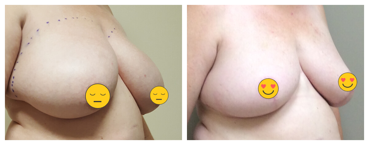 Example of Breast Lift. Akkary Surgery Center. Morgantown, WV