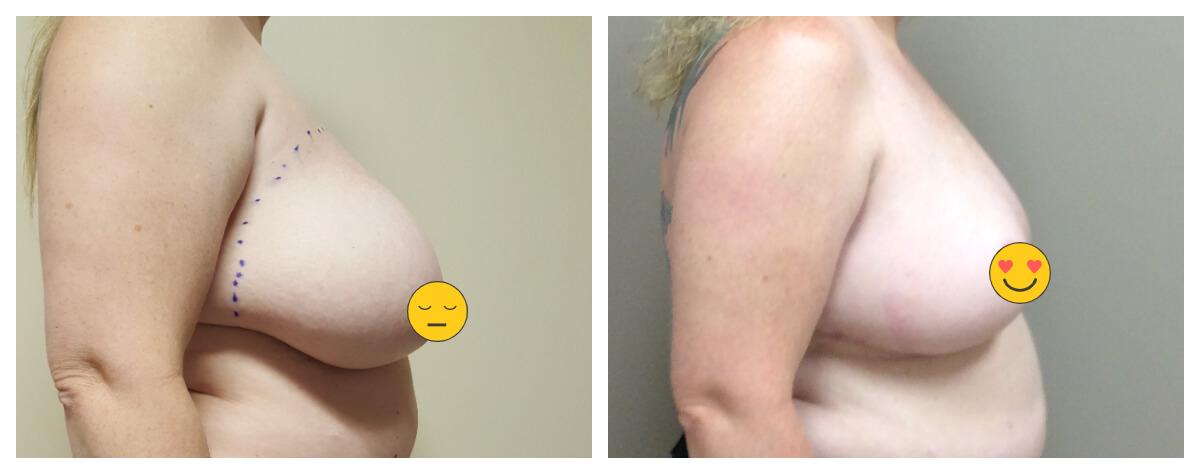 Example of Breast Reduction. Akkary Surgery Center. Morgantown, WV