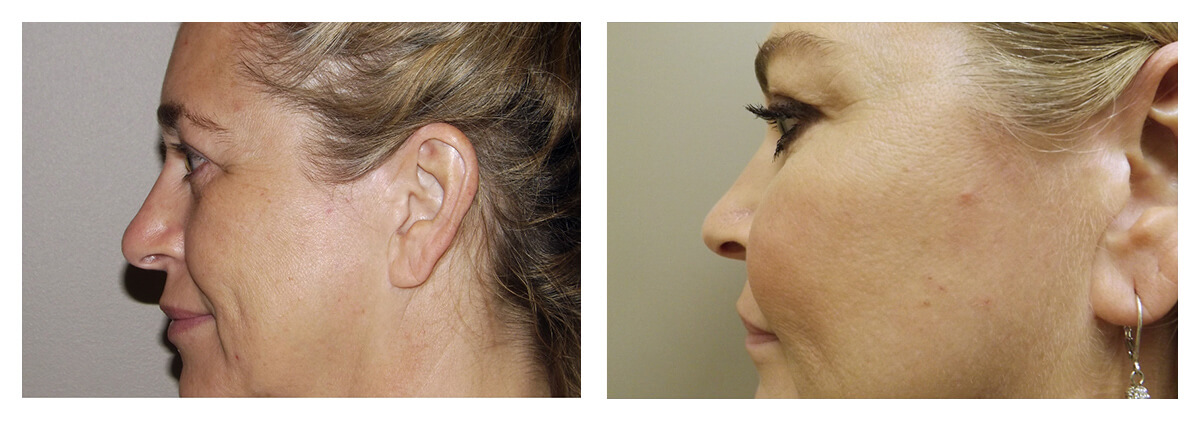 Example of Cheek Implants, Dr. Akkary, Morgantown, WV