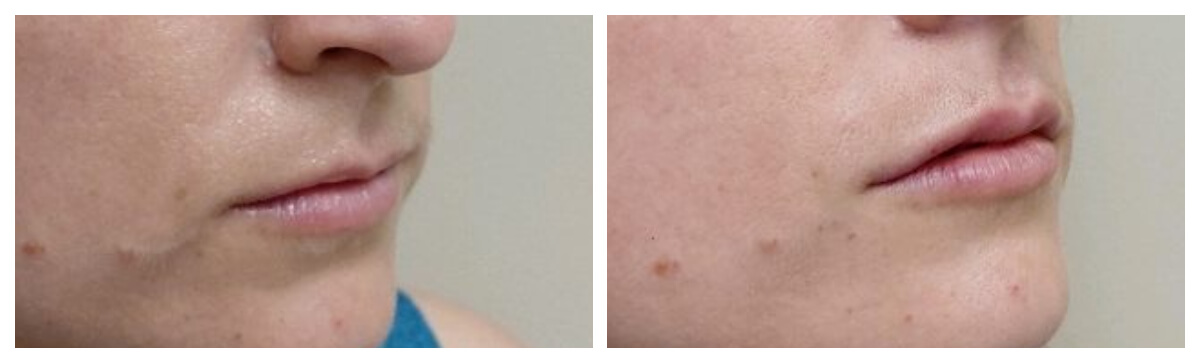Dermal Filler Lips. Skinsational Medspa Morgantown, WV