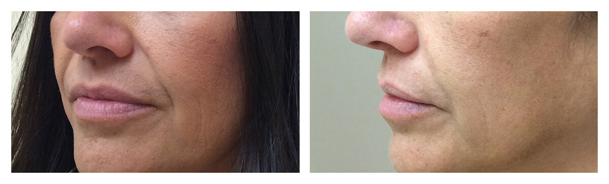 Example of Dermal Filler, Dr. Akkary, Skinsational Medspa, Morgantown, WV