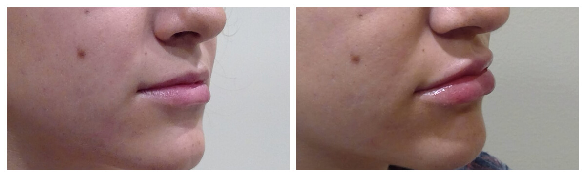 Example of Lip Fillers, Skinsational Medspa, Morgantown, WV