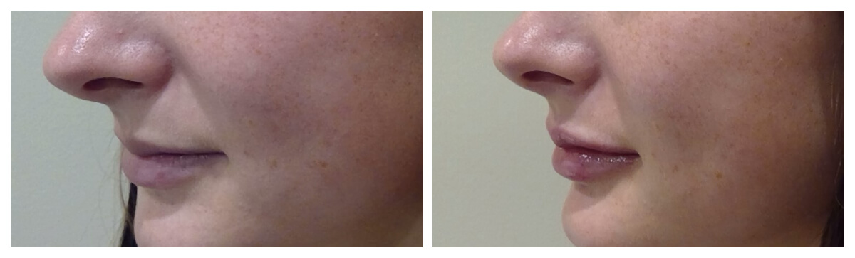 Example of Lip Augmentation in Morgantown, WV Skinsational Medspa