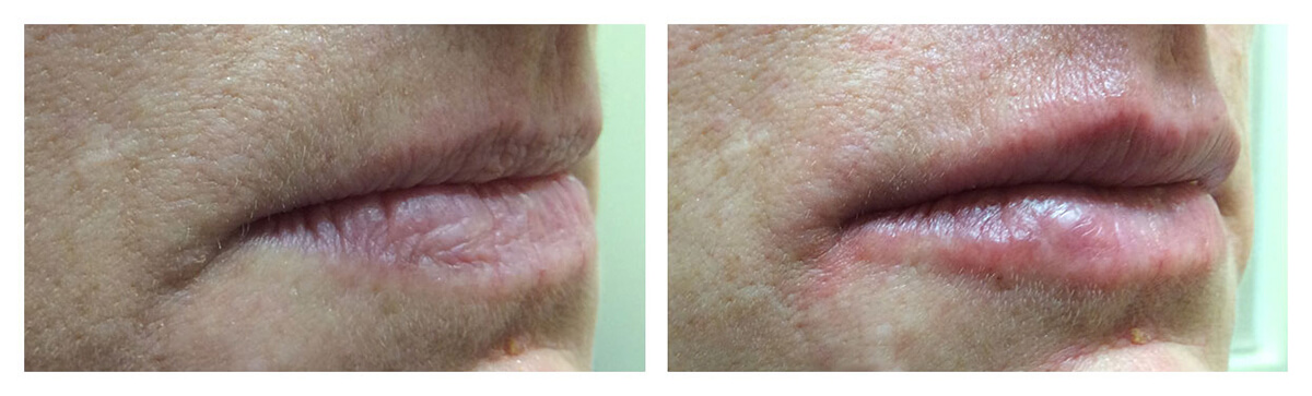 Example of Lip Augmentation, Lip Fillers, Dr. Akkary, Morgantown, WV