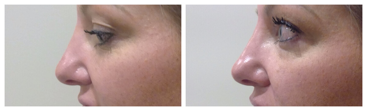 Example of Liquid Rhinoplasty Morgantown, WV