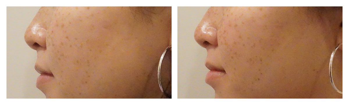 Example of Liquid Rhinoplasty, Dr. Akkary, Morgantown, WV