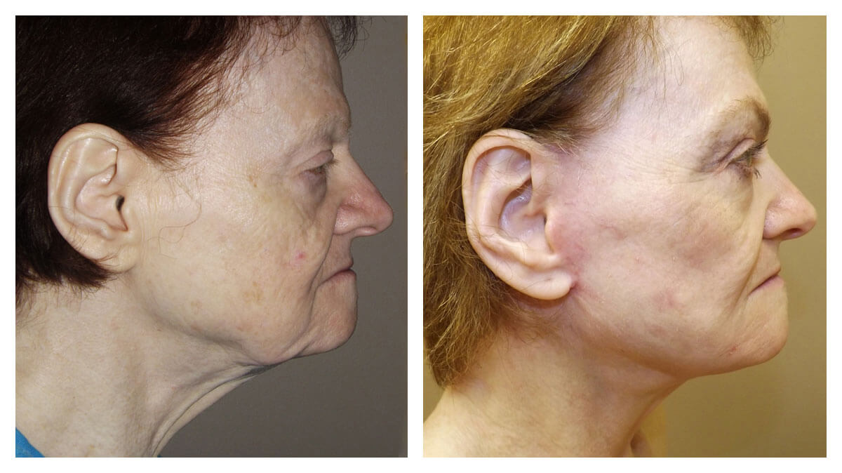 Cosmetic Surgery Photo - Neck Lift
