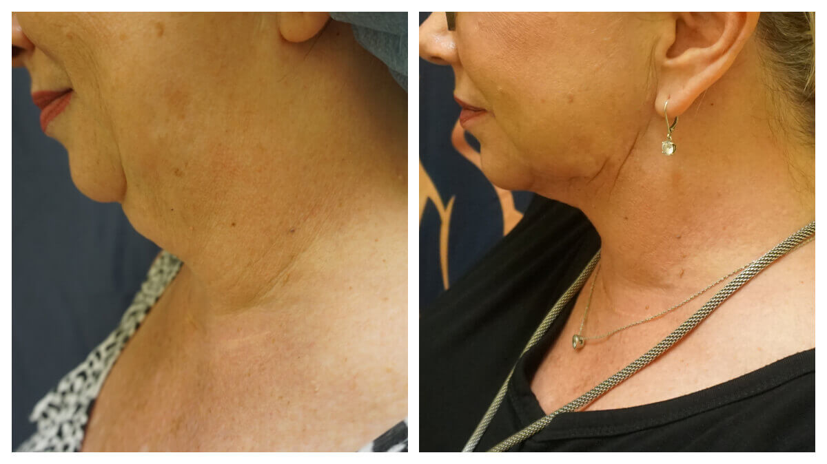 Example of Neck Liposuction. Akkary Surgery Center in Morgantown, WV
