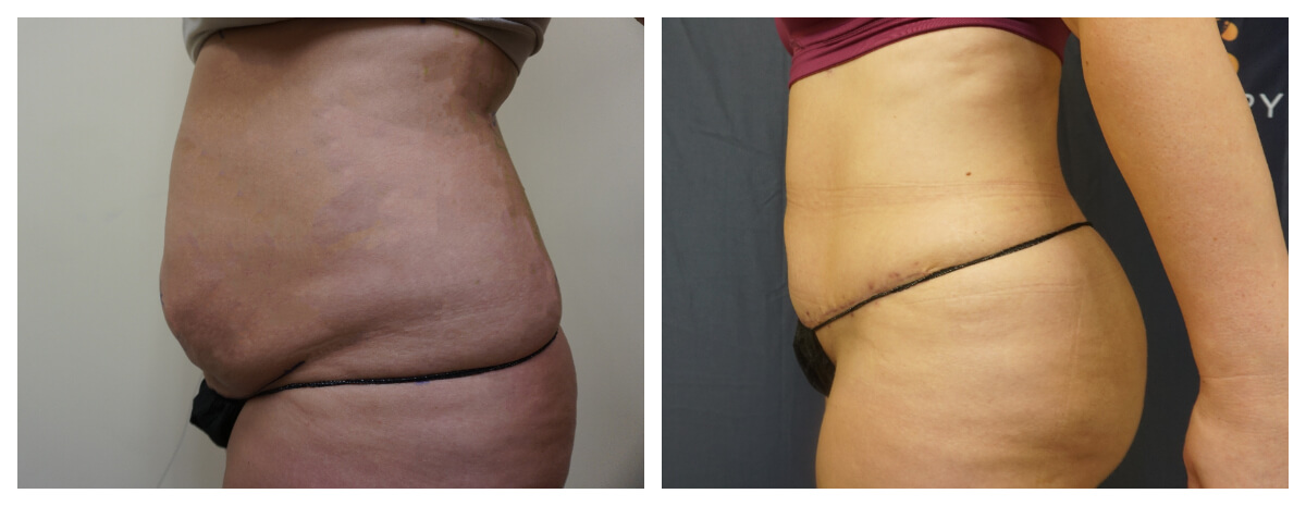 Example of Tummy Tuck. Akkary Surgery Center in Morgantown, WV