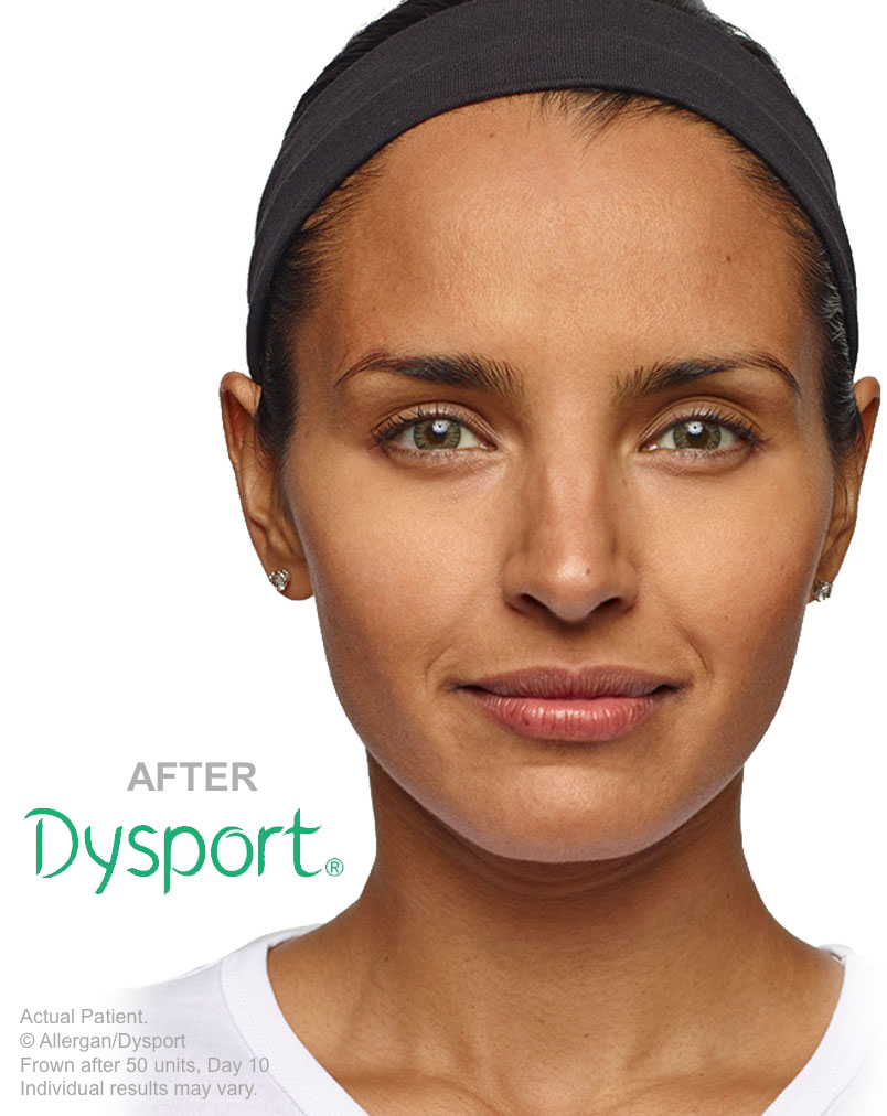 Dysport, Skinsational Medspa, Morgantown, WV
