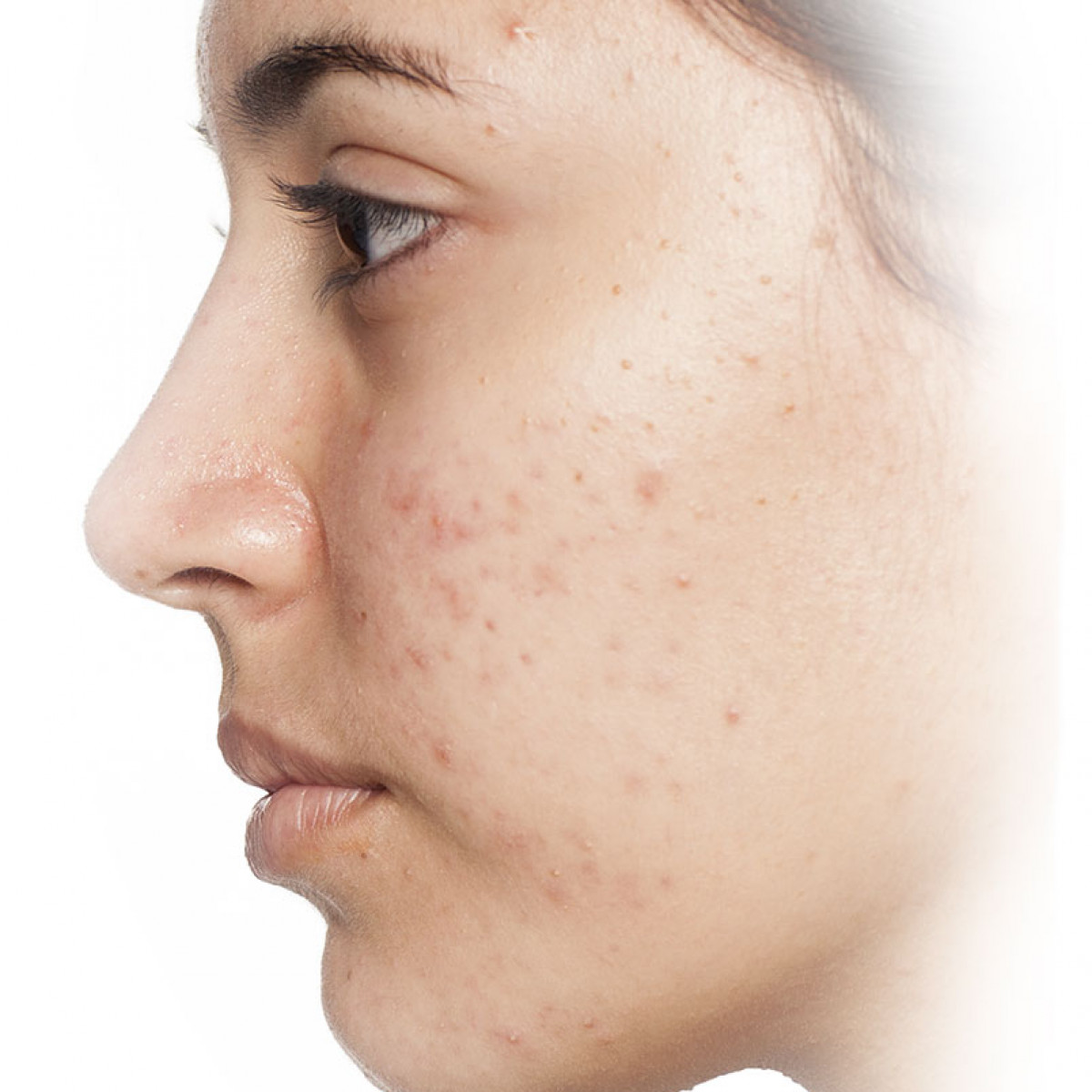 Adult acne systems